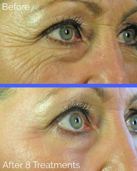 Before and After Oxygeneo Facial - Surrey Spa